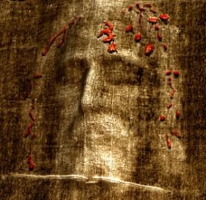 Кров від тернового вінця