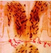 Сліди крові на спині Христа від ударів римським батогом